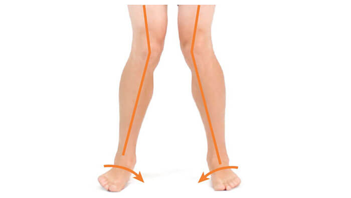 Pronation Distortion Syndrome